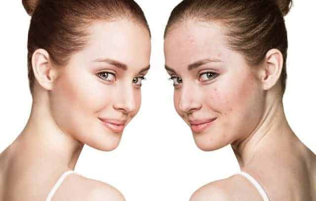 excessive biotin can cause Acne
